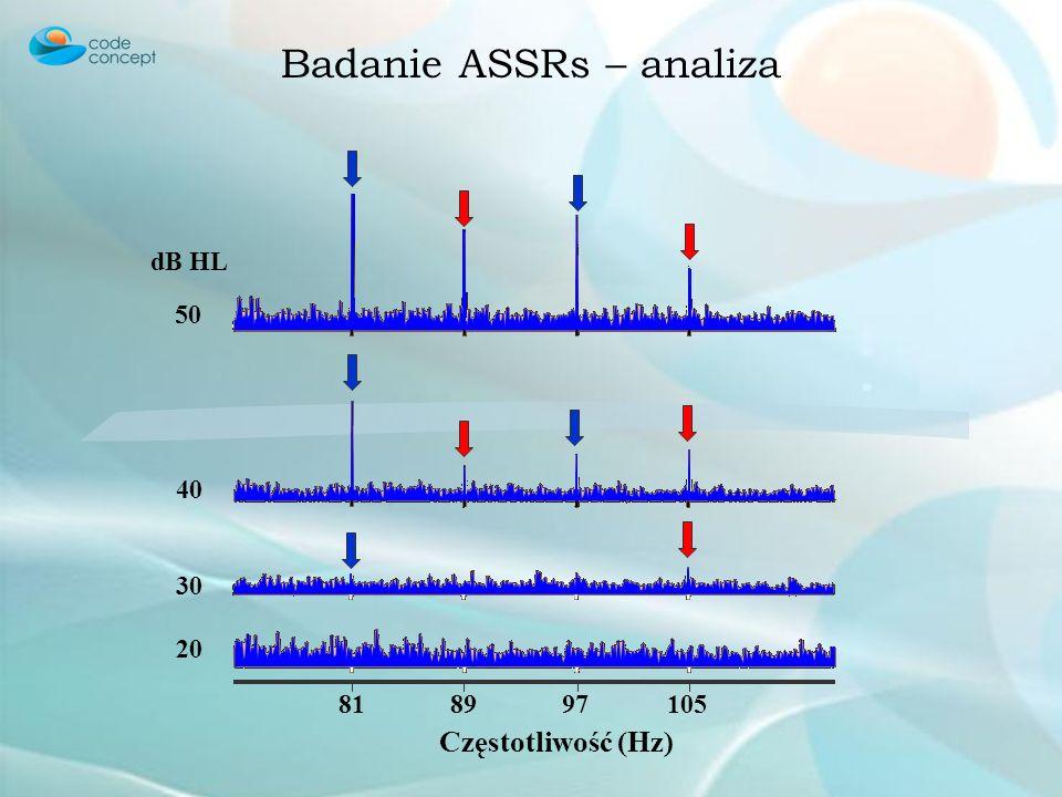 Badanie ASSRs – analiza 50 40 30 20 dB HL 818997105 Częstotliwość (Hz)