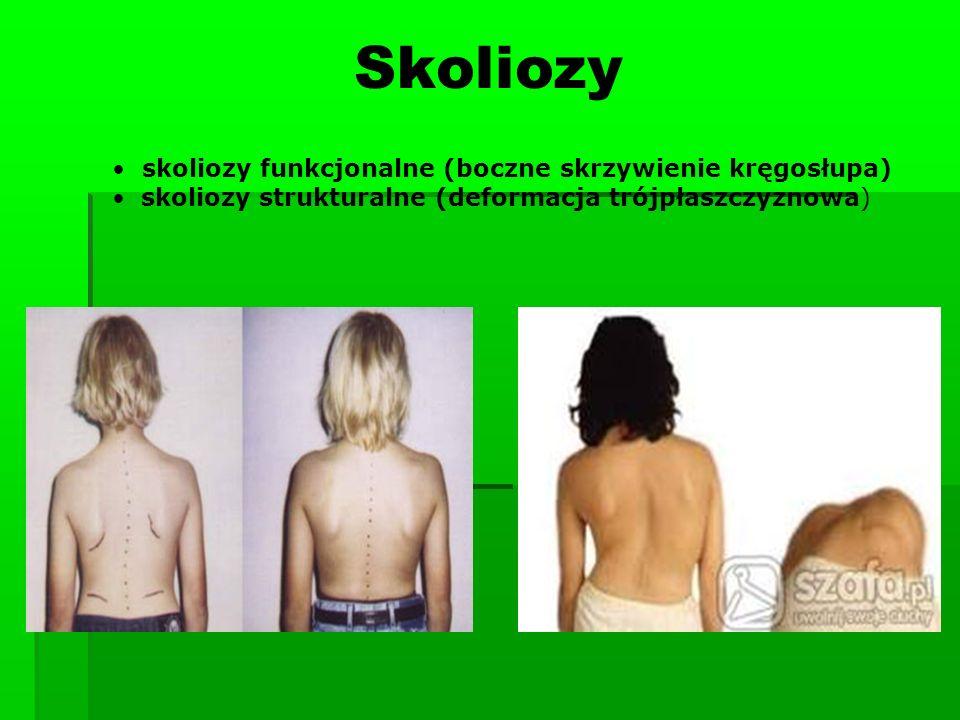 Skoliozy skoliozy funkcjonalne (boczne skrzywienie kręgosłupa) skoliozy strukturalne (deformacja trójpłaszczyznowa)