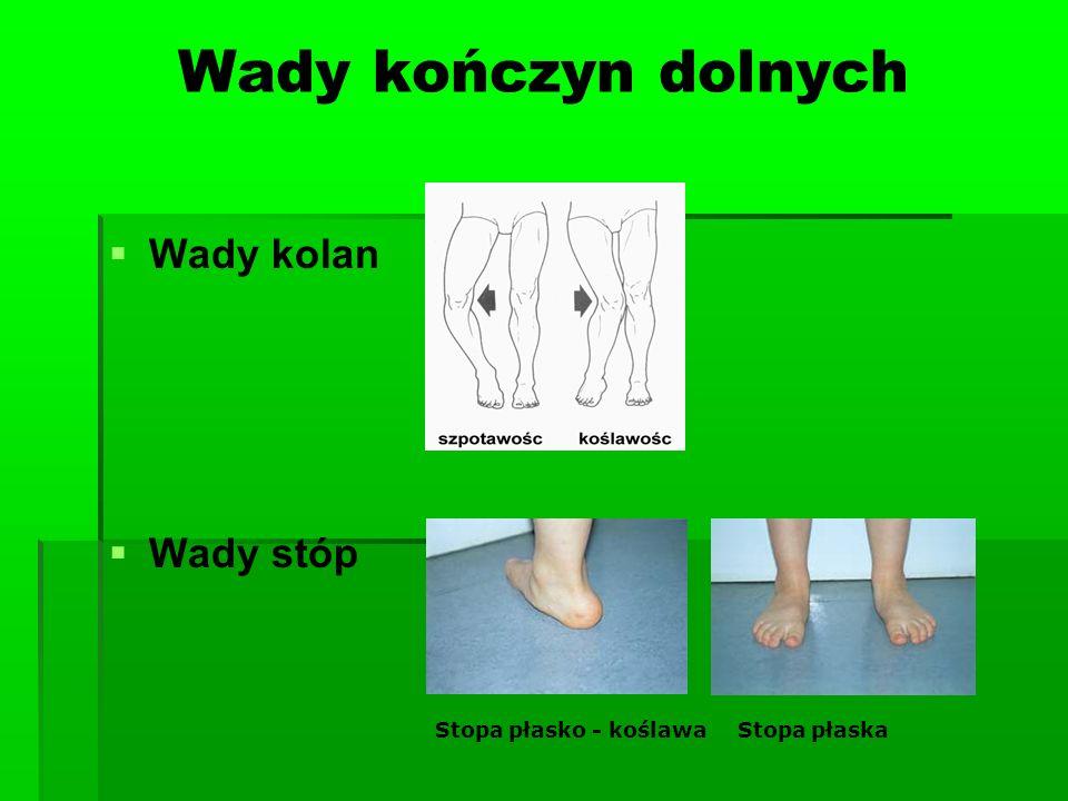 Wady kończyn dolnych Wady kolan Wady stóp Stopa płasko - koślawaStopa płaska