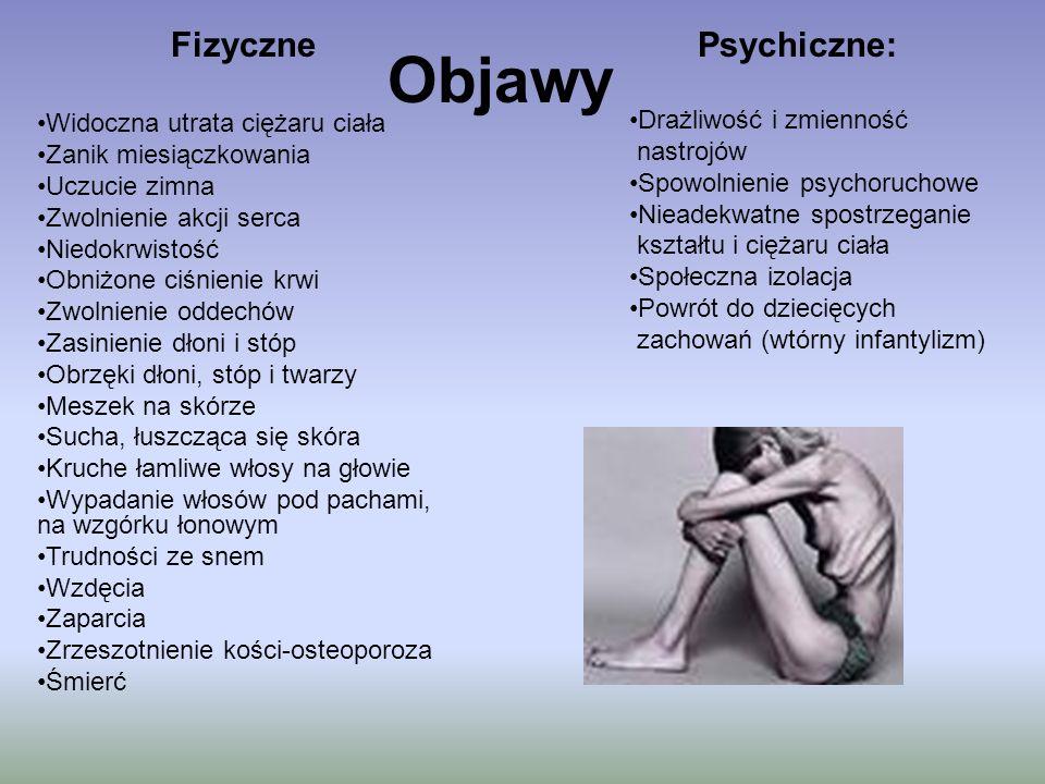 Objawy Psychiczne: Drażliwość i zmienność nastrojów Spowolnienie psychoruchowe Nieadekwatne spostrzeganie kształtu i ciężaru ciała Społeczna izolacja
