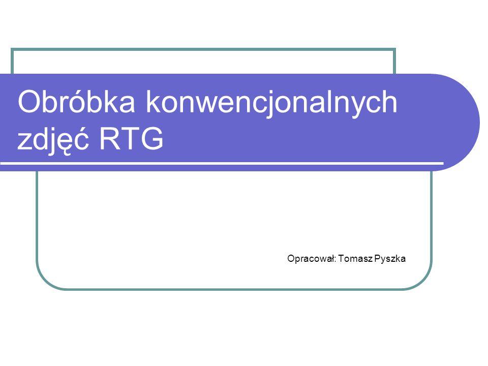 Obróbka konwencjonalnych zdjęć RTG Opracował: Tomasz Pyszka