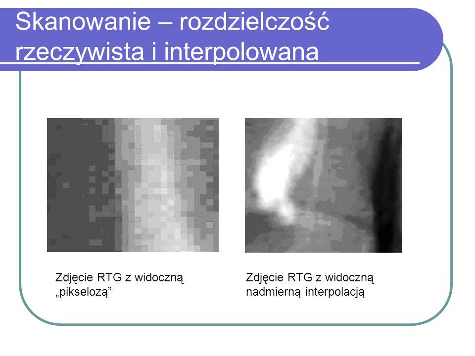 Skanowanie – rozdzielczość rzeczywista i interpolowana Zdjęcie RTG z widoczną pikselozą Zdjęcie RTG z widoczną nadmierną interpolacją