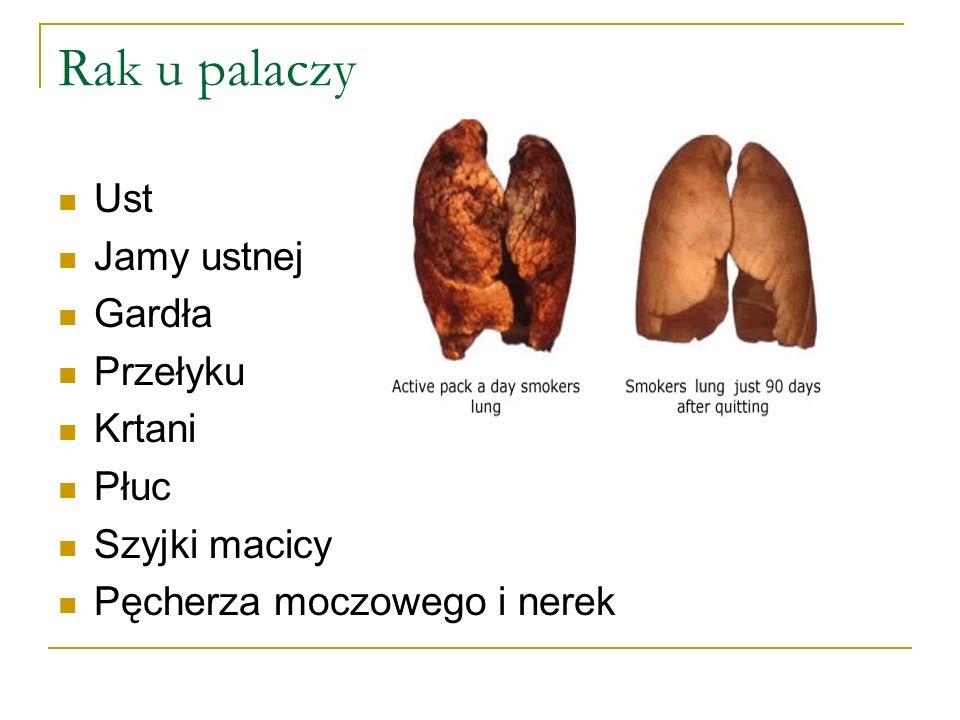 Ust Jamy ustnej Gardła Przełyku Krtani Płuc Szyjki macicy Pęcherza moczowego i nerek Rak u palaczy