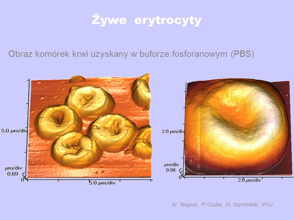 Żywe erytrocyty Obraz komórek krwi uzyskany w buforze fosforanowym (PBS) M. Targosz, P. Czuba, M. Szymoński, IFUJ