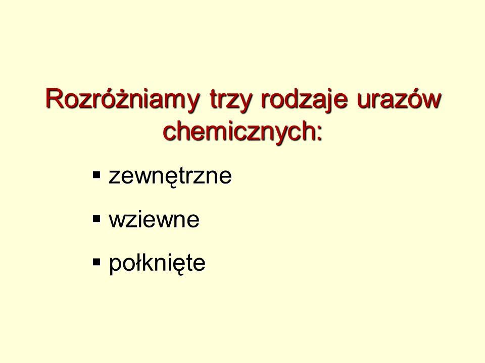 Rozróżniamy trzy rodzaje urazów chemicznych: zewnętrzne zewnętrzne wziewne wziewne połknięte połknięte