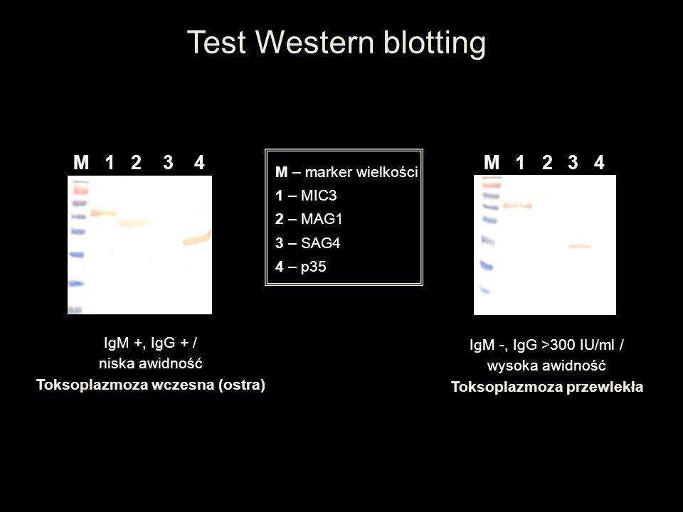 Test Western blotting M 1 2 3 4 M – marker wielkości 1 – MIC3 2 – MAG1 3 – SAG4 4 – p35 IgM +, IgG + / niska awidność Toksoplazmoza wczesna (ostra) Ig