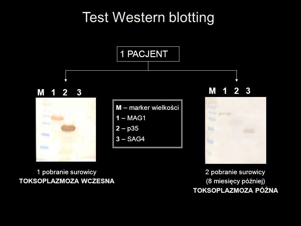 Test Western blotting M 1 2 3 M – marker wielkości 1 – MAG1 2 – p35 3 – SAG4 M 1 2 3 1 PACJENT 1 pobranie surowicy TOKSOPLAZMOZA WCZESNA 2 pobranie su