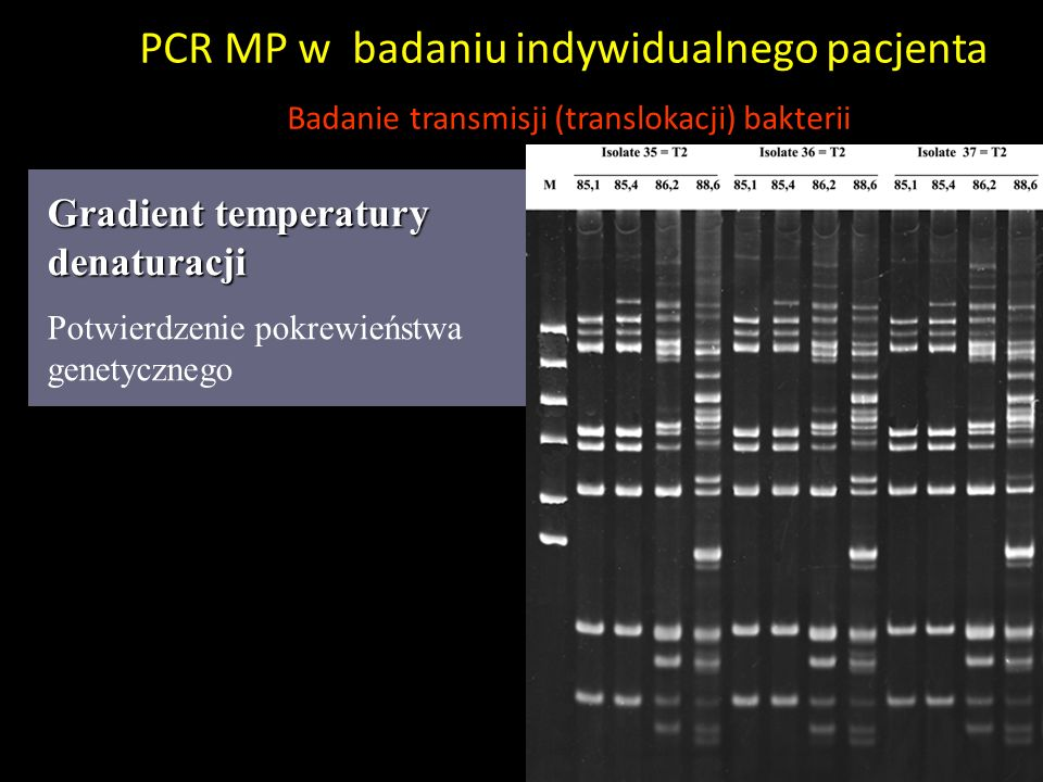 Gradient temperatury denaturacji Potwierdzenie pokrewieństwa genetycznego PCR MP w badaniu indywidualnego pacjenta Badanie transmisji (translokacji) b