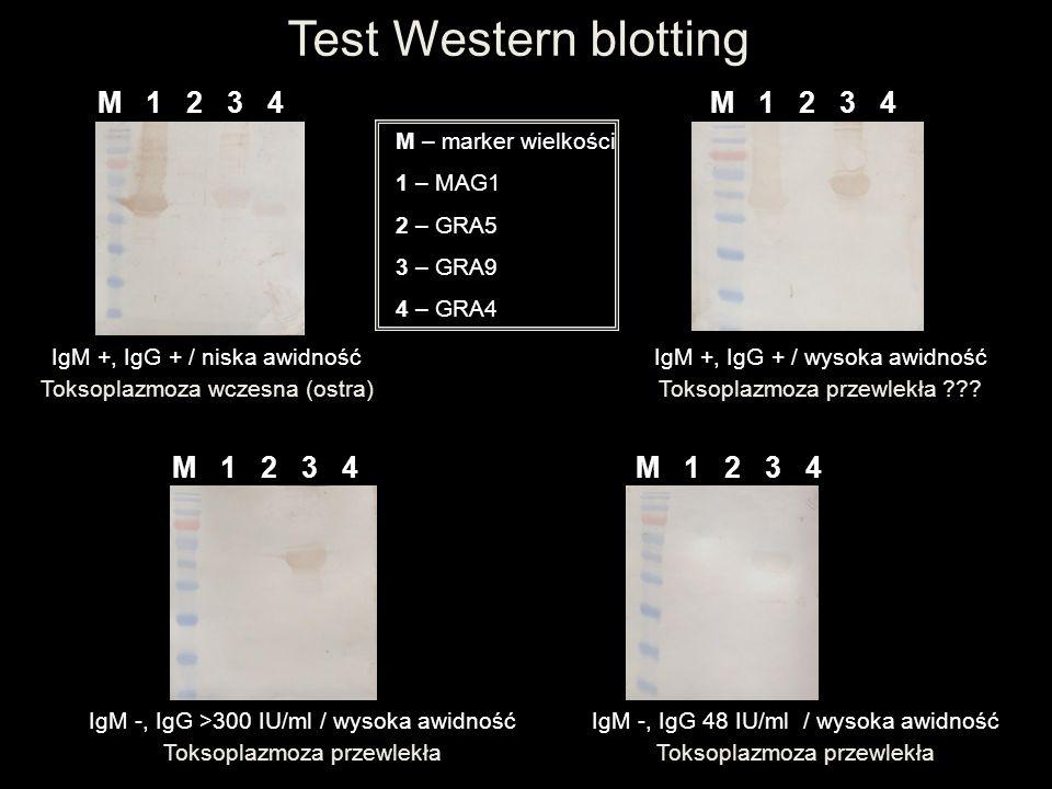 Test Western blotting M 1 2 3 4 M – marker wielkości 1 – MIC3 2 – MAG1 3 – SAG4 4 – p35 IgM +, IgG + / niska awidność Toksoplazmoza wczesna (ostra) IgM -, IgG >300 IU/ml / wysoka awidność Toksoplazmoza przewlekła