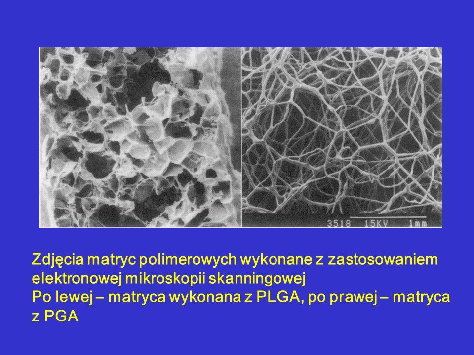 Zdjęcia matryc polimerowych wykonane z zastosowaniem elektronowej mikroskopii skanningowej Po lewej – matryca wykonana z PLGA, po prawej – matryca z PGA