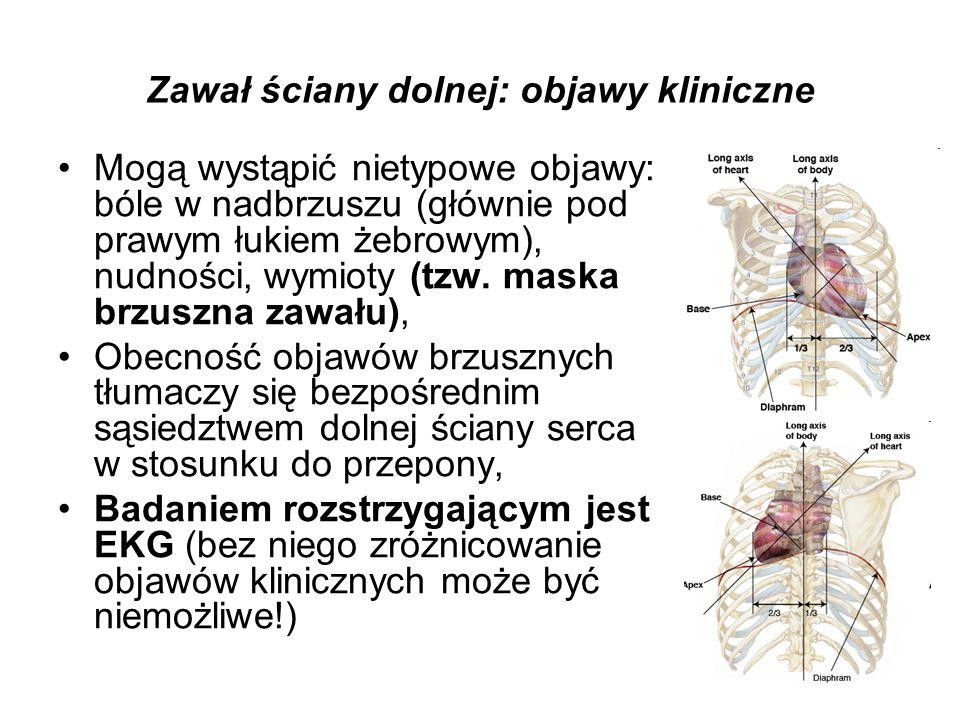 Zawał ściany dolnej: objawy kliniczne Mogą wystąpić nietypowe objawy: bóle w nadbrzuszu (głównie pod prawym łukiem żebrowym), nudności, wymioty (tzw.
