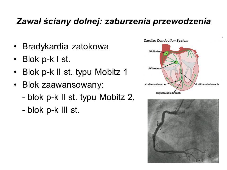 Zawał ściany dolnej: zaburzenia przewodzenia Bradykardia zatokowa Blok p-k I st. Blok p-k II st. typu Mobitz 1 Blok zaawansowany: - blok p-k II st. ty