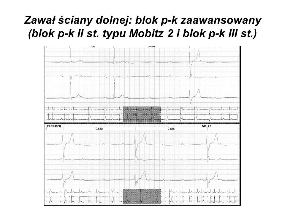 Zawał ściany dolnej: blok p-k zaawansowany (blok p-k II st. typu Mobitz 2 i blok p-k III st.)
