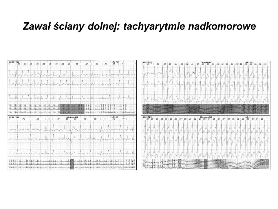 Zawał ściany dolnej: tachyarytmie nadkomorowe