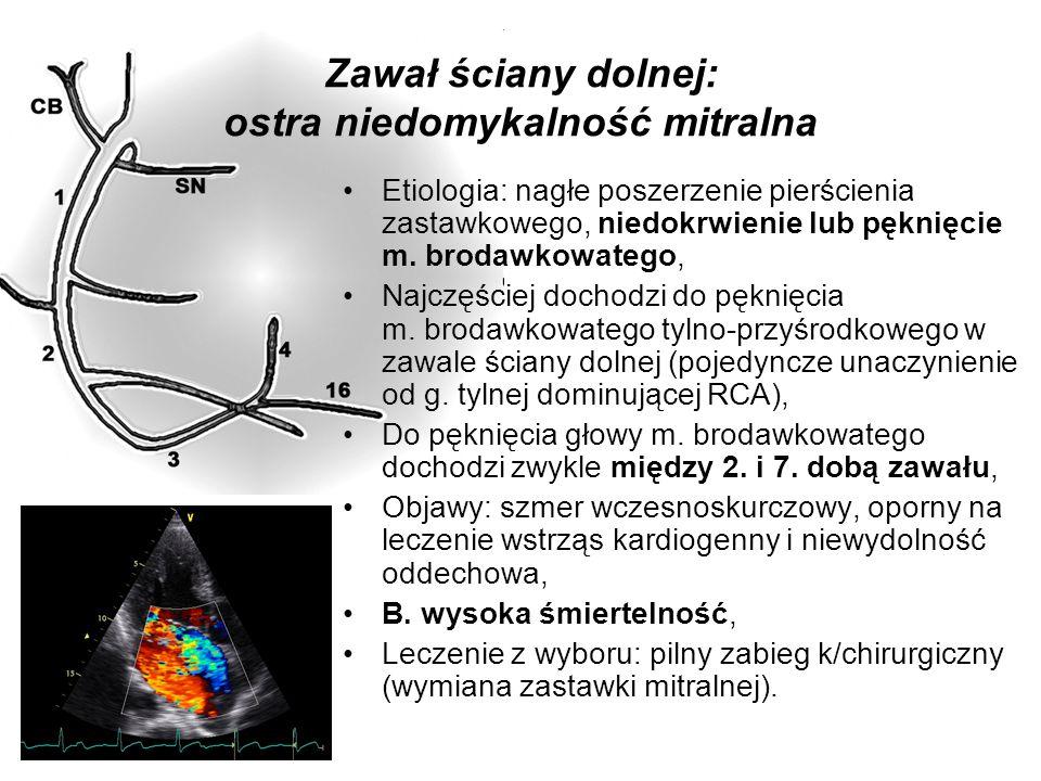 Zawał ściany dolnej: ostra niedomykalność mitralna Etiologia: nagłe poszerzenie pierścienia zastawkowego, niedokrwienie lub pęknięcie m. brodawkowateg