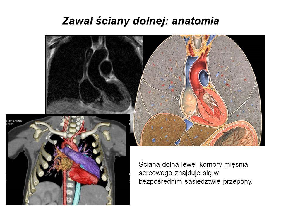 Zawał ściany dolnej: krążenie wieńcowe 80%: okluzja gałęzi zstępującej tylnej prawej tętnicy wieńcowej (RCA), 20%: dystalna okluzja gałęzi okalającej (Cx) lewej tętnicy wieńcowej