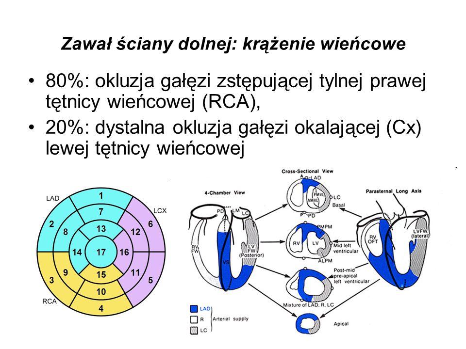 Zawał ściany dolnej: krążenie wieńcowe RCA oddaje: gałęzie do węzła zatokowego (proksymalny odcinek) i przedsionkowo-komorowego (dystalny odcinek), Gałąź zstępująca tylna RCA zaopatruje w krew mięsień brodawkowaty tylno-przyśrodkowy.