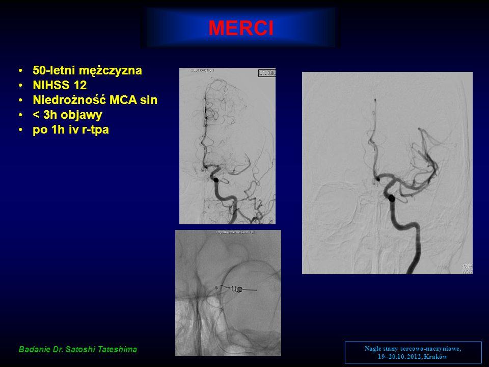 MERCI 50-letni mężczyzna NIHSS 12 Niedrożność MCA sin < 3h objawy po 1h iv r-tpa Badanie Dr. Satoshi Tateshima Nagłe stany sercowo-naczyniowe, 19–20.1