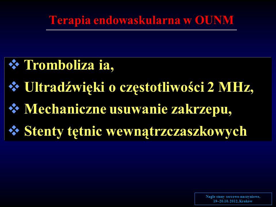 Terapia endowaskularna w OUNM Tromboliza ia, Ultradźwięki o częstotliwości 2 MHz, Mechaniczne usuwanie zakrzepu, Stenty tętnic wewnątrzczaszkowych Nag