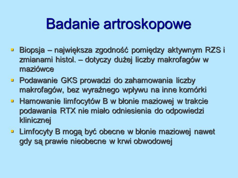 Badanie artroskopowe Biopsja – największa zgodność pomiędzy aktywnym RZS i zmianami histol. – dotyczy dużej liczby makrofagów w maziówce Biopsja – naj