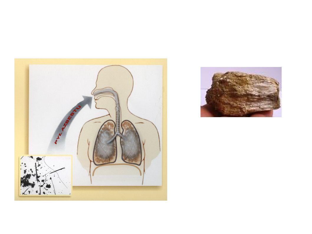 Zachorowania Zachorować mogą osoby, które miały kontakt z azbestem ze względu na rodzaj wykonywanej pracy oraz osoby narażone na długotrwałe wdychanie włókien azbestowych o małym stężeniu lub osoby narażone na krótkotrwałe przebywanie w miejscu o dużym stężeniu włókien azbestowych.