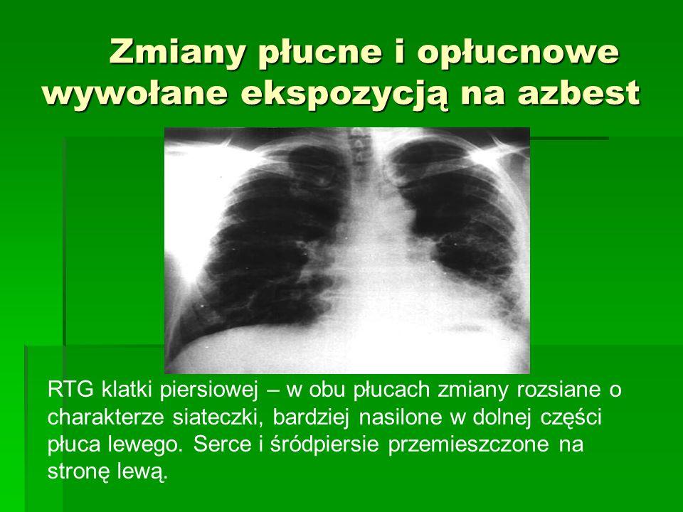 Zmiany płucne i opłucnowe wywołane ekspozycją na azbest RTG klatki piersiowej – w obu płucach zmiany rozsiane o charakterze siateczki, bardziej nasilone w dolnej części płuca lewego.