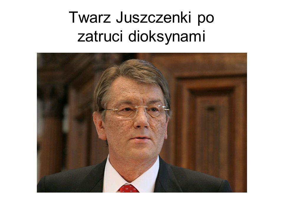 Wybory prezydenckie I tura wyborów 31.X.2004 Wiktor Juszczenko 39,87% Wiktor Janukowycz 39,32% II tura wyborów 21.XI.2004 Wiktor Juszczenko 46% Wiktor Janukowycz 49% Po zamknięciu lokali wyborczych media ogłosiły zwycięstwo Wiktora Juszczenki.
