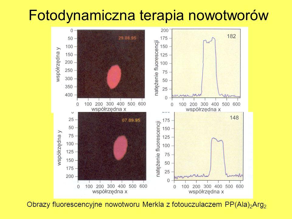 Fotodynamiczna terapia nowotworów Obrazy fluorescencyjne nowotworu Merkla z fotouczulaczem PP(Ala) 2 Arg 2