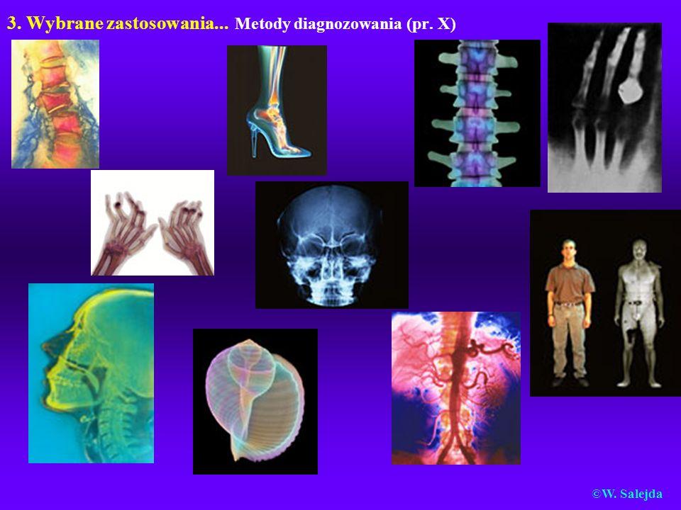 3. Wybrane zastosowania... Metody diagnozowania (pr. X) ©W. Salejda