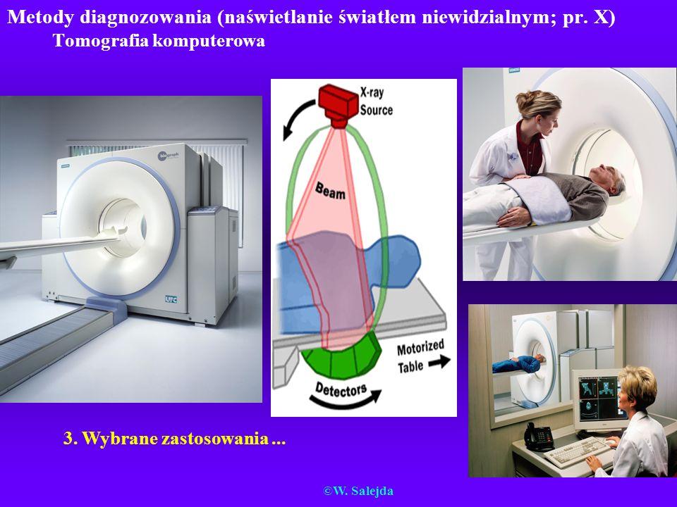 Metody diagnozowania (naświetlanie światłem niewidzialnym; pr. X) Tomografia komputerowa 3. Wybrane zastosowania... ©W. Salejda