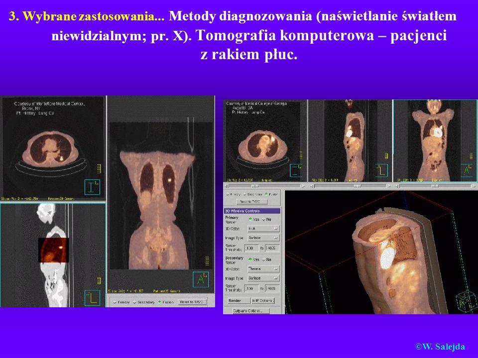 3. Wybrane zastosowania... Metody diagnozowania (naświetlanie światłem niewidzialnym; pr. X). Tomografia komputerowa – pacjenci z rakiem płuc. ©W. Sal