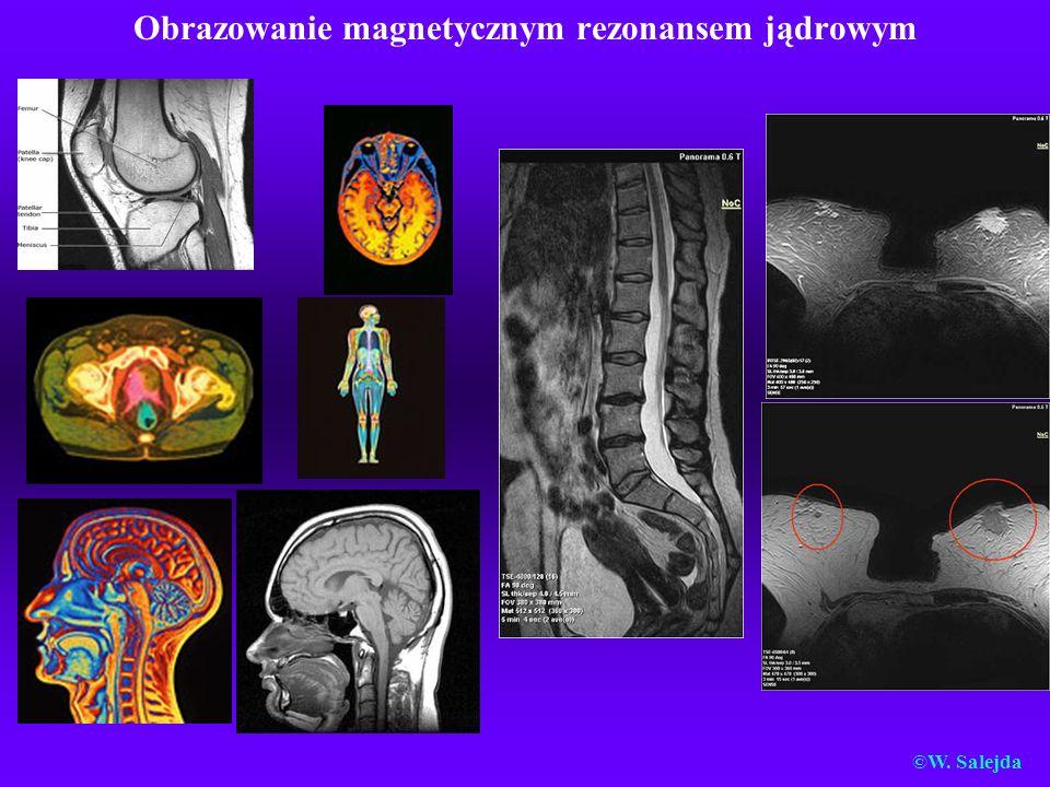 Obrazowanie magnetycznym rezonansem jądrowym ©W. Salejda