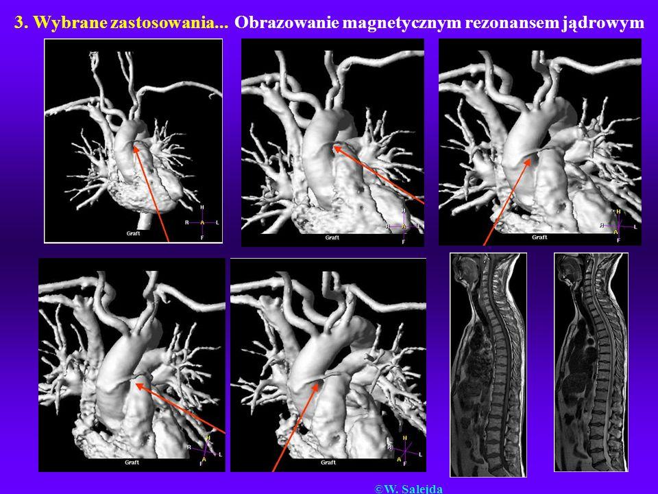 3. Wybrane zastosowania... Obrazowanie magnetycznym rezonansem jądrowym ©W. Salejda