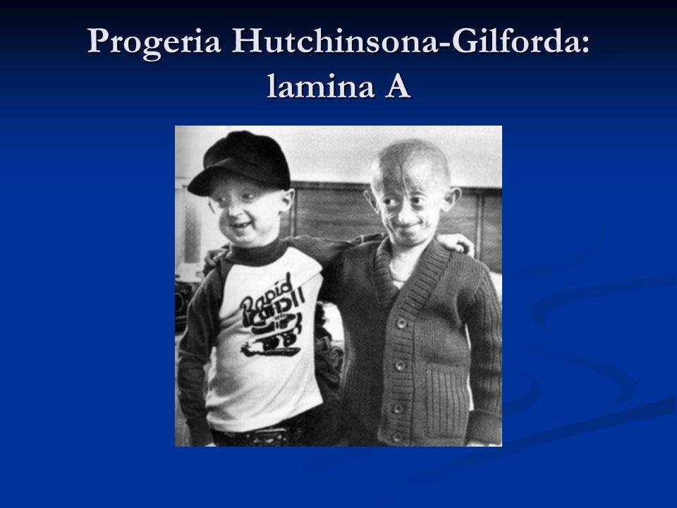 Progeria Hutchinsona-Gilforda: lamina A