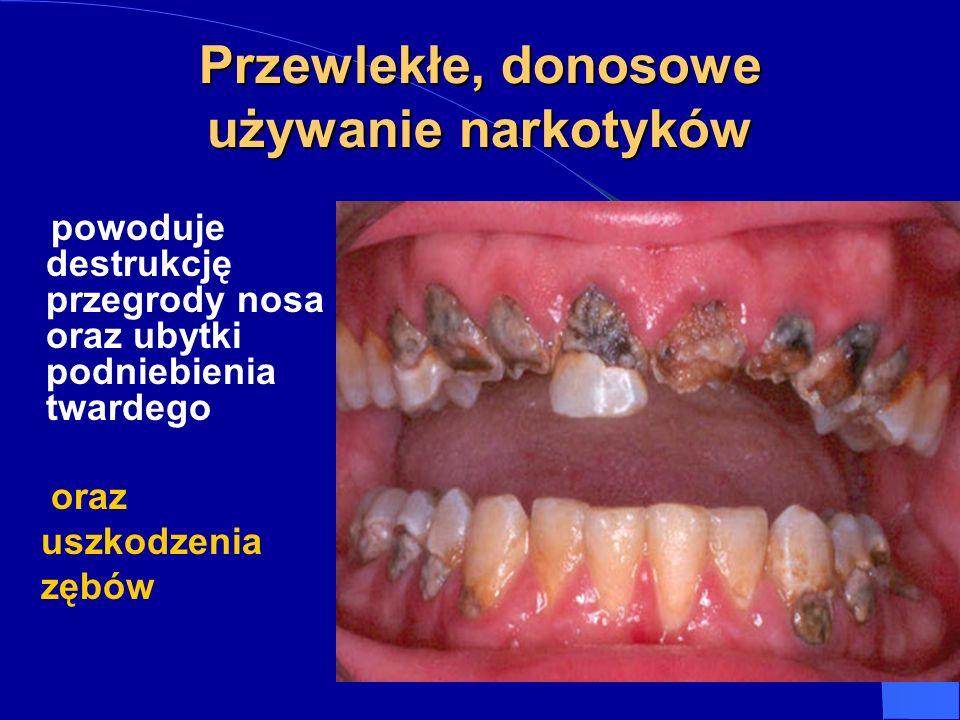 Przewlekłe, donosowe używanie narkotyków powoduje destrukcję przegrody nosa oraz ubytki podniebienia twardego oraz uszkodzenia zębów