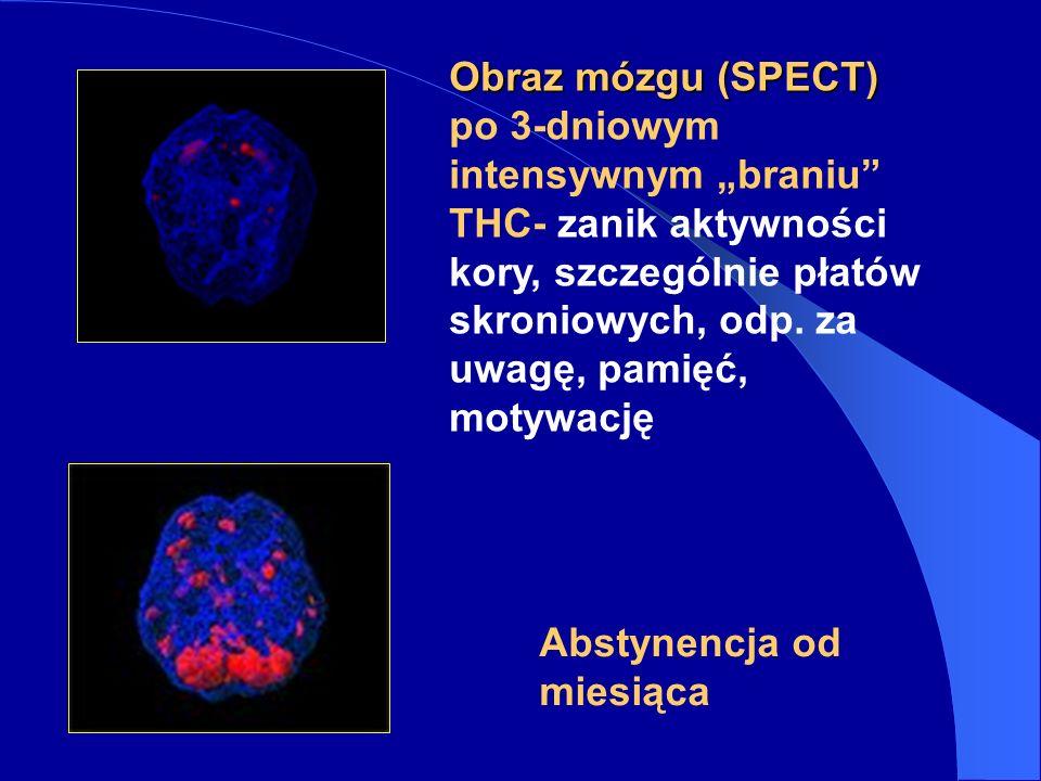 Obraz mózgu (SPECT) po 3-dniowym intensywnym braniu THC- zanik aktywności kory, szczególnie płatów skroniowych, odp.