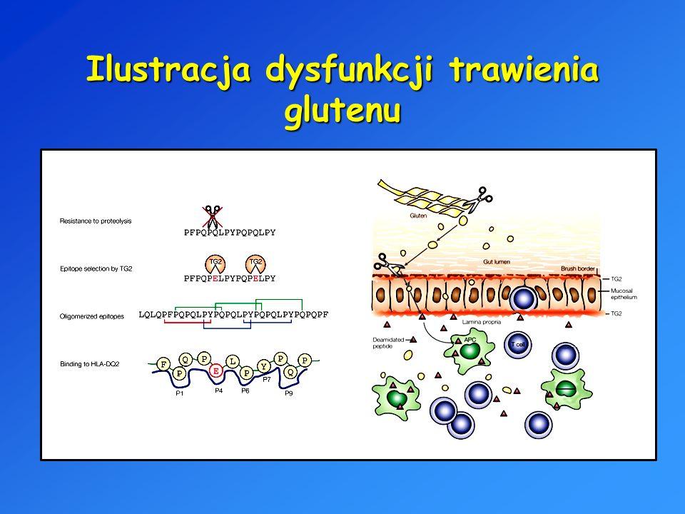 Ilustracja dysfunkcji trawienia glutenu