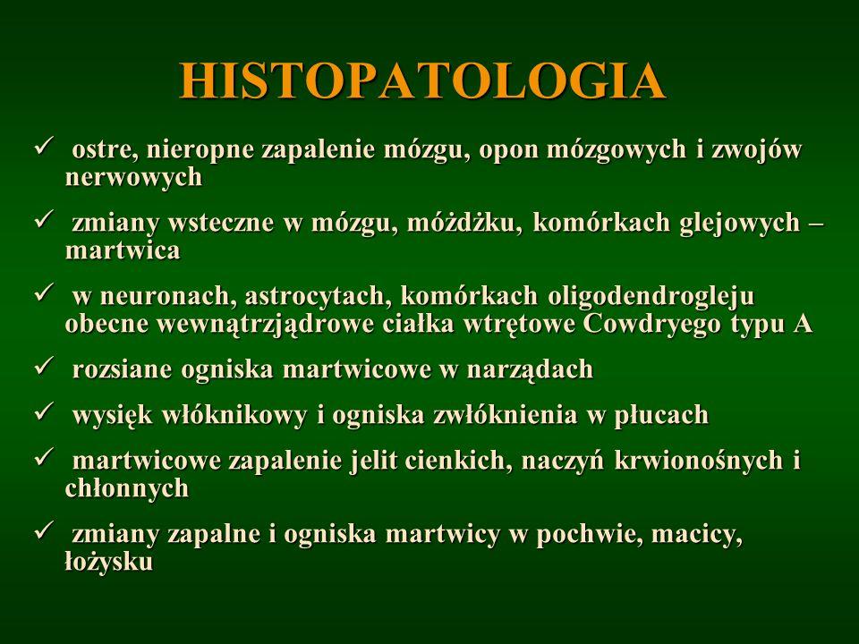 HISTOPATOLOGIA ostre, nieropne zapalenie mózgu, opon mózgowych i zwojów nerwowych ostre, nieropne zapalenie mózgu, opon mózgowych i zwojów nerwowych z