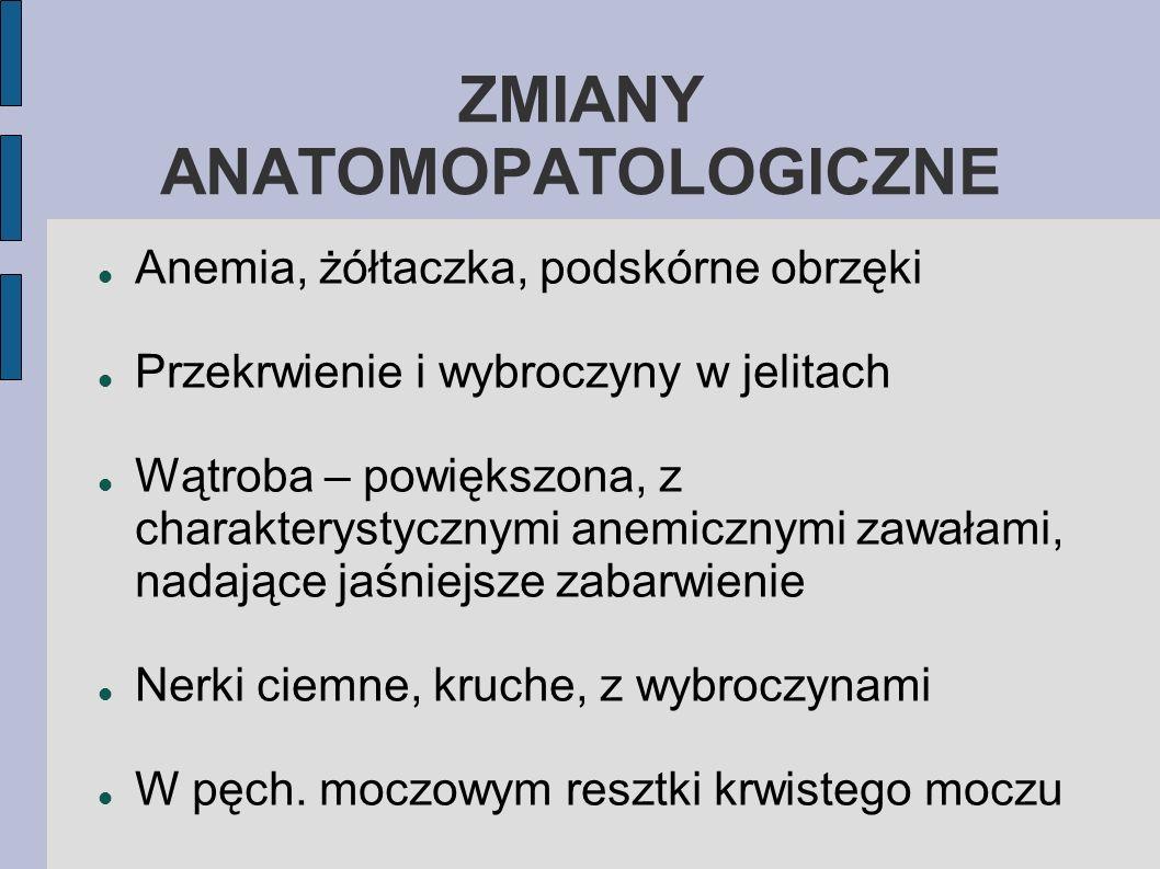 ZMIANY ANATOMOPATOLOGICZNE Anemia, żółtaczka, podskórne obrzęki Przekrwienie i wybroczyny w jelitach Wątroba – powiększona, z charakterystycznymi anem
