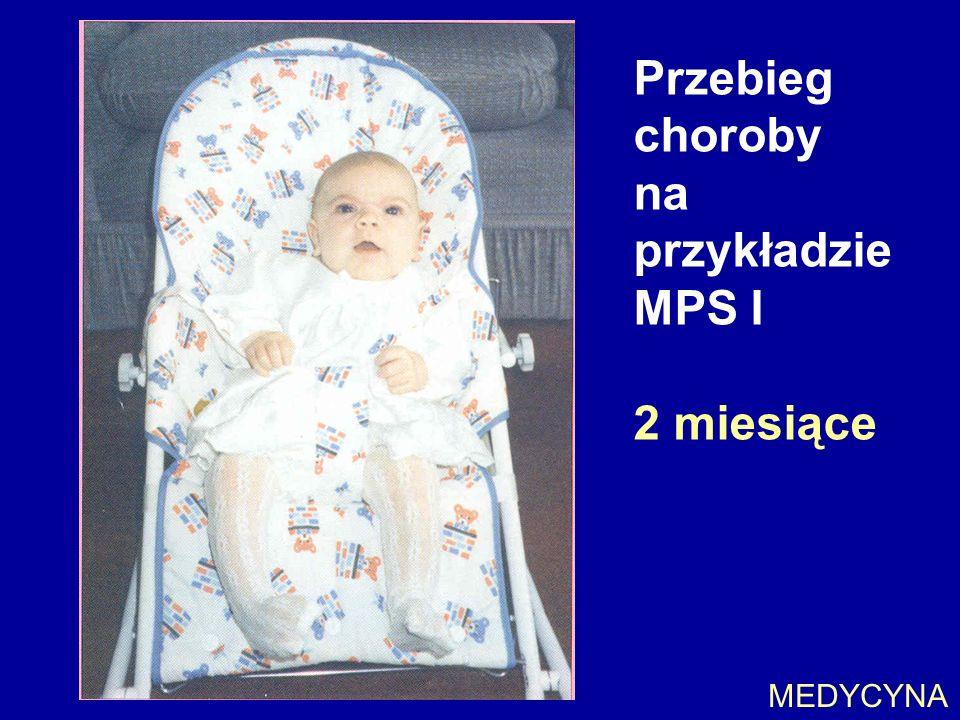 Przebieg choroby na przykładzie MPS I 2 miesiące MEDYCYNA