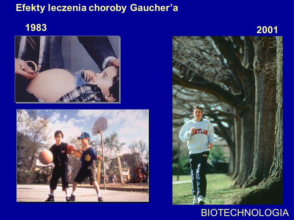 Efekty leczenia choroby Gauchera 1983 2001 BIOTECHNOLOGIA