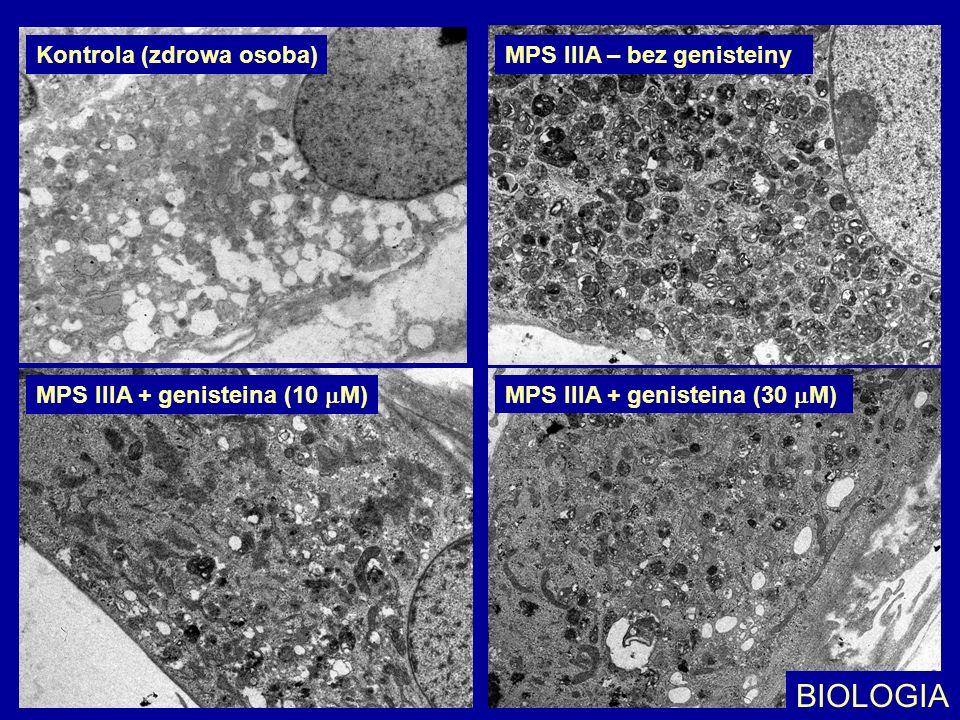 Kontrola (zdrowa osoba)MPS IIIA – bez genisteiny MPS IIIA + genisteina (10 M) MPS IIIA + genisteina (30 M) BIOLOGIA