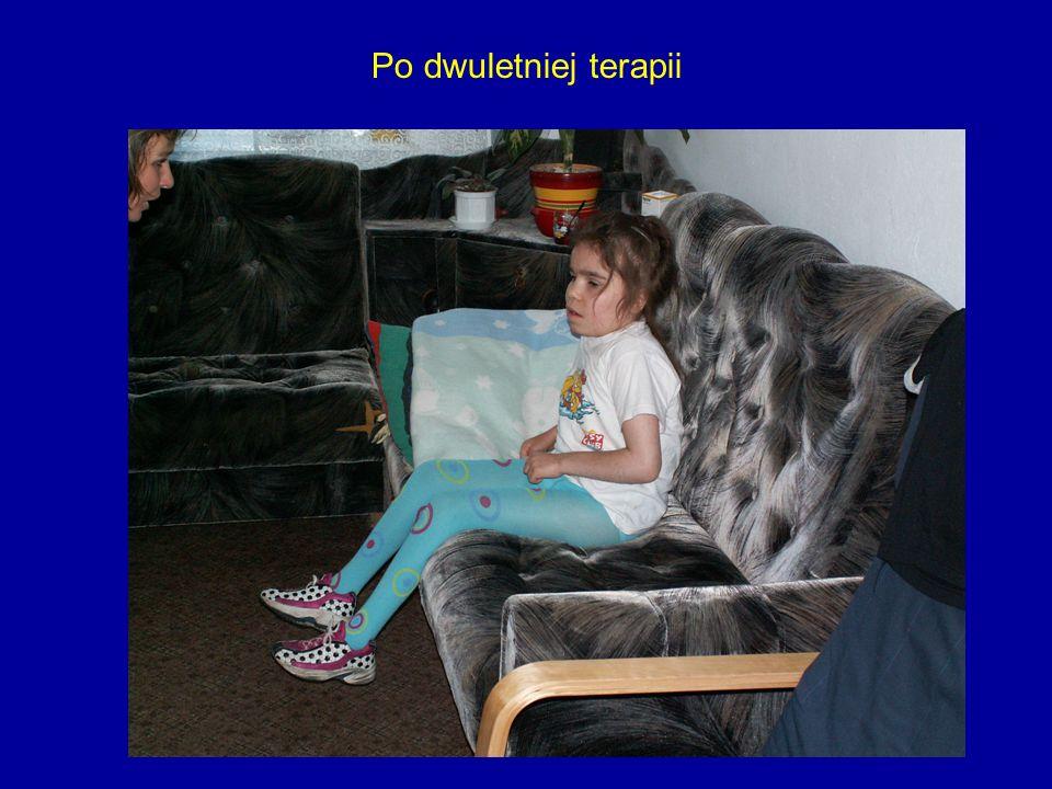 Po dwuletniej terapii