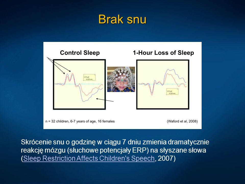 Brak snu Skrócenie snu o godzinę w ciągu 7 dniu zmienia dramatycznie reakcję mózgu (słuchowe potencjały ERP) na słyszane słowa (Sleep Restriction Affe