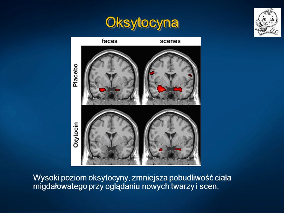 OksytocynaOksytocyna Wysoki poziom oksytocyny, zmniejsza pobudliwość ciała migdałowatego przy oglądaniu nowych twarzy i scen.