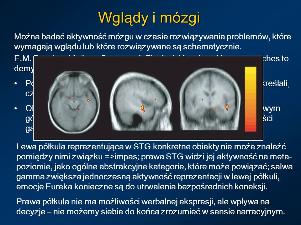 Można badać aktywność mózgu w czasie rozwiązywania problemów, które wymagają wglądu lub które rozwiązywane są schematycznie. E.M. Bowden, M. Jung-Beem