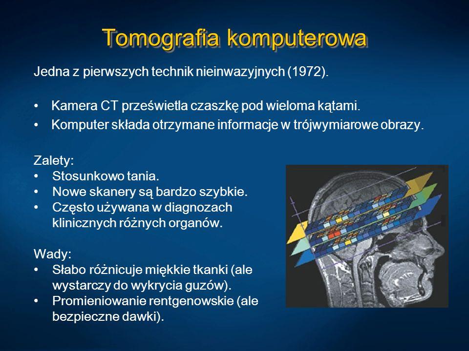 Tomografia komputerowa Jedna z pierwszych technik nieinwazyjnych (1972). Kamera CT prześwietla czaszkę pod wieloma kątami. Komputer składa otrzymane i