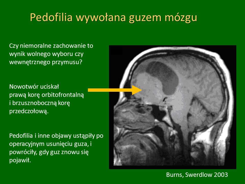 Burns, Swerdlow 2003 Pedofilia wywołana guzem mózgu Czy niemoralne zachowanie to wynik wolnego wyboru czy wewnętrznego przymusu.