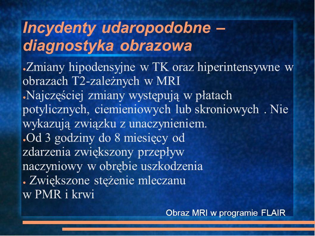 Incydenty udaropodobne – diagnostyka obrazowa Zmiany hipodensyjne w TK oraz hiperintensywne w obrazach T2-zależnych w MRI Najczęściej zmiany występują