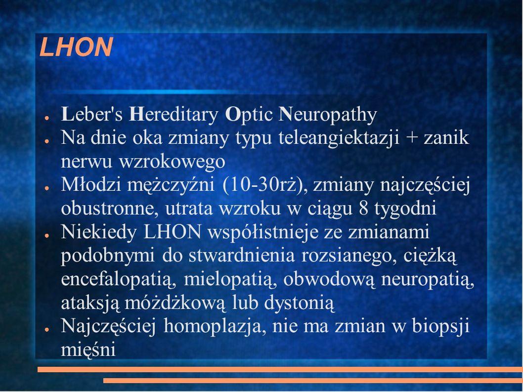 LHON Leber's Hereditary Optic Neuropathy Na dnie oka zmiany typu teleangiektazji + zanik nerwu wzrokowego Młodzi mężczyźni (10-30rż), zmiany najczęści